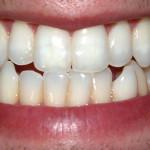 Krvácení dásní není přirozené! Jde o nemoc, kterou je třeba řešit!